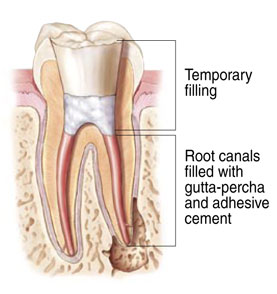 Cross-section diagram of a tooth being filled with a temporary filling