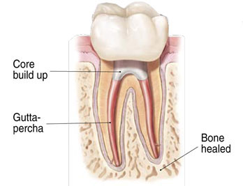 Cross-section diagram of a now-healthy tooth after a successful root canal treatment